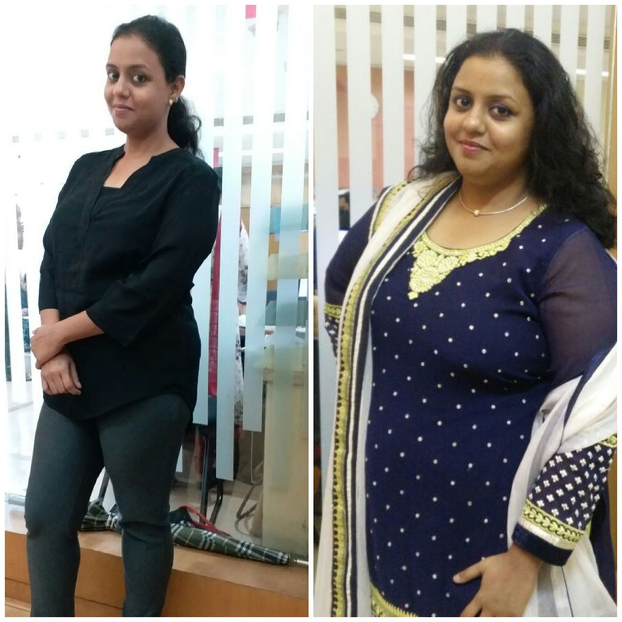 Hair Fall After Bariatric Surgery Dr Aparna Govil Bhasker